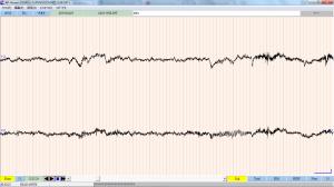 my eeg signal when I am singing